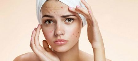 Skincare Korea Untuk Menghilangkan Bekas Jerawat